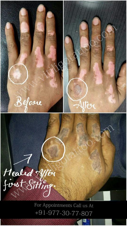 vitiligo tattoo in mumbai