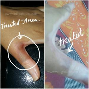 vitiligo tattoo in india
